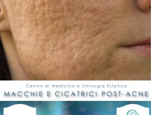 macchie e cicatrici post acne